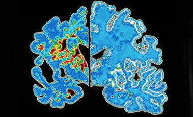 Le point sur les techniques et les méthodes pour le diagnostic d'Alzheimer
