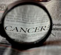La lutte contre le cancer, le combat de l'Institut du Cerveau et de la Moelle épinière