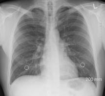 Cancers du poumons : la piste du dépistage obligatoire