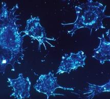 Les cancers augmentent beaucoup plus vite pour les femmes